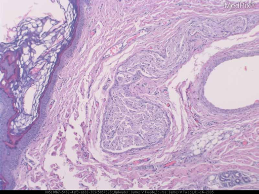 Histopathology: The biopsy shows connective tissue with scattered eccrine glands, fatty tissue, neural proliferation, and cartilage.