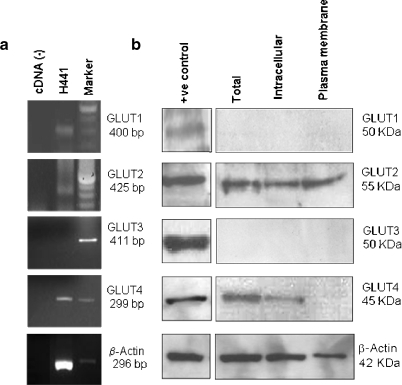 a RT-PCR of GLUT1–GLUT4 mRNA sequences from non-polarised H441 cells. Products were resolved on ethidium bromide-stained agarose gels. RT-PCR products corresponding to the correct size for GLUT1 (400 bp), GLUT2 (425 bp) and GLUT4 (299 bp) were amplified. No products corresponding to GLUT3 (411 bp) were detected in H441 cells but were detected in a positive control, Ishikawa cell line (data not shown). Amplification of β-actin was used as a control for the reaction. b Western blot analysis of glucose transporter expression in non-polarised H441 cells. Total protein (Total), intracellular proteins (Intracellular) and plasma membrane protein (Plasma membrane) (50 μg) were resolved on acrylamide gels. Immunostained products corresponding to GLUT2 (∼60 kDa) and GLUT4 (∼45 kDa) were detected. Positive controls (+C) used: GLUT1, skeletal muscle; GLUT2, liver; GLUT3, Ishikawa cells; GLUT4, adipose tissue
