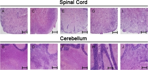 IFN-γ production in a fraction of pathogenic T cells protects the cerebellum from inflammation. C57BL6/J mice received either 5 × 106 MOG35-55-specific Th1 cells generated in C57BL6/J (WT Th1; A and B), 5 × 106 MOG35-55-specific Th1 cells generated in IFN-γ–deficient (IFN-γ KO) mice (C and D), 5 × 106 WT and 5 × 106 IFN-γ KO (E and F), or 106 WT and 5 × 106 IFN-γ KO (G–J) as a single i.v. injection. 17 d after injection and after development of classical EAE (A, B, and E–H), nonclassical EAE (C and D), or both classical and nonclassical disease (I and J), spinal cord and cerebellum were collected and stained with H&E to reveal inflammation. Representative slides from five independent experiments are shown. Bars, 200 μm.