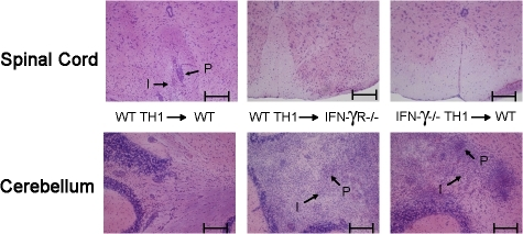 Deficiency of either IFN-γ or IFN-γR results in inflammation of the cerebellum after adoptive transfer of CNS pathogenic T cells. MOG35-55-specific T cell lines were generated in either C57BL/6 (WT Th1) or IFN-γ–deficient (IFN-γ KO Th1) mice in the presence of IL-12. T cells were i.v. injected into either C57BL/6 (WT) or IFN-γR–deficient (IFN-γR KO) mice at 5 × 106 cells/mouse. 17 d after injection, spinal cord and cerebellum were collected and stained with H&E to reveal inflammation. Perivascular lesions and invasive parenchymal lesions are indicated with an arrow and the letters P and I, respectively. Representative slides from three independent experiments are shown. Bars, 200 μm.