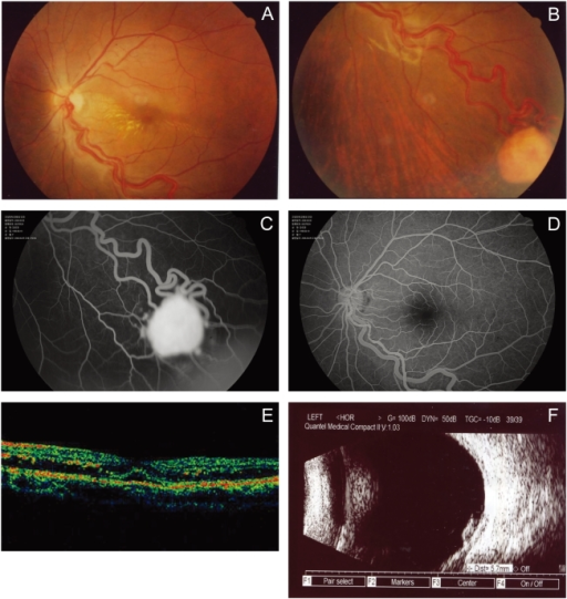 First visit (pre-treatment). (A) The left fundus reveals mild macular edema and hard exudates with tortuous dilated vessel. (B) Circumscribed endophytic retinal capillary hemangioma appears at the 5 o'clock periphery with a prominent dilated and tortuous feeding artery and draining vein. (C, D) Progressive and complete filling of the hemangioma and the retinal vein becomes prominent. (E) OCT image demonstrating cystic macular edema at first visit. (F) B-scan shows a well-demarcated endophytic retinal lesion without choroidal effects.