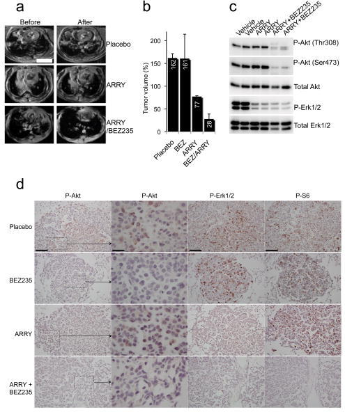 Combined PI3K and MEK inhibition dramatically shrinks K-Ras G12D induced lung tumors(a,b) LSL K-Ras mice were induced to develop tumors by adenoviral Cre inhalation. After the establishment of sizeable tumors (determined by MRI), mice were treated with either placebo, NVP-BEZ235 35mg/kg once daily, ARRY-142886 25mg/kg twice daily, or NVP-BEZ235 35mg/kg once daily and ARRY-142886 25mg/kg once daily for two weeks. (a) Representative axial MRIs of the chest are shown. Scales is 4.5 mm. (b) The average tumor volumes of three mice in each treatment group after 2 weeks are shown relative to pretreatment tumor volumes. (c,d) Mice were treated as in (a) for 1.5 days. Six hours after their dose on day two of treatment, the animals were sacrificed. (c) One lung was snap-frozen in liquid nitrogen and assessed by western blotting using the indicated antibodies. (d) The other lung was fixed in formalin and assessed by immunohistochemistry (IHC) with the indicated antibodies. Microscopy was performed at two magnifications for the P-Akt IHC. The scale for the high magnification P-Akt IHC images is 25μM. The scale is 100μM for the other images. Hematoxylin and Eosin stains of the nodules examined by IHC are shown in the Supplemental Material (Supplementary Fig. 6).