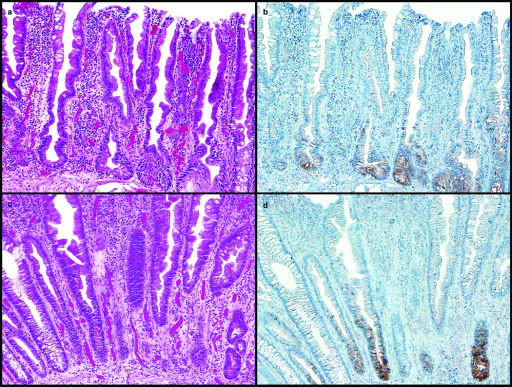 a. and b. : Sessile Serrated Adenoma, H&E, Proximal Colon, 20X:a. Section of proximal colon stained with hematoxylin and eosin showing some features of sessile serrated adenoma including dilatation of the base of the crypts, crypts extending parallel to the muscularis mucosae, serration at the base of the crypts, and eosinophilic change of the surface epithelium. b. Section of proximal colon sessile serrated adenoma in Figure 1a. with MUC6 immunostaining of the basal crypts.c. and d. : Hyperplastic Polyp, H&E, Distal Colon, 20X:c. Section of distal colon stained with hematoxylin and eosin showing features of hyperplastic polyp including serration in the upper half to one third of the crypts with normal proliferation including a proliferation zone at the base of the crypts that is symmetric, and crypts that remain narrow and lined with proliferative cells. d. Section of distal colon hyperplastic polyp in Figure 1c. with MUC6 immunostaining of the basal crypts.