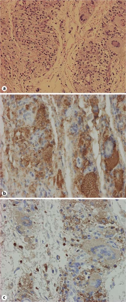 Histopathological images from hematoxylin-eosin (a), original magnification, 100×, and immunohistochemical analyses showing the expression of CD68 (b) and CD163 (c), original magnification, 200×.