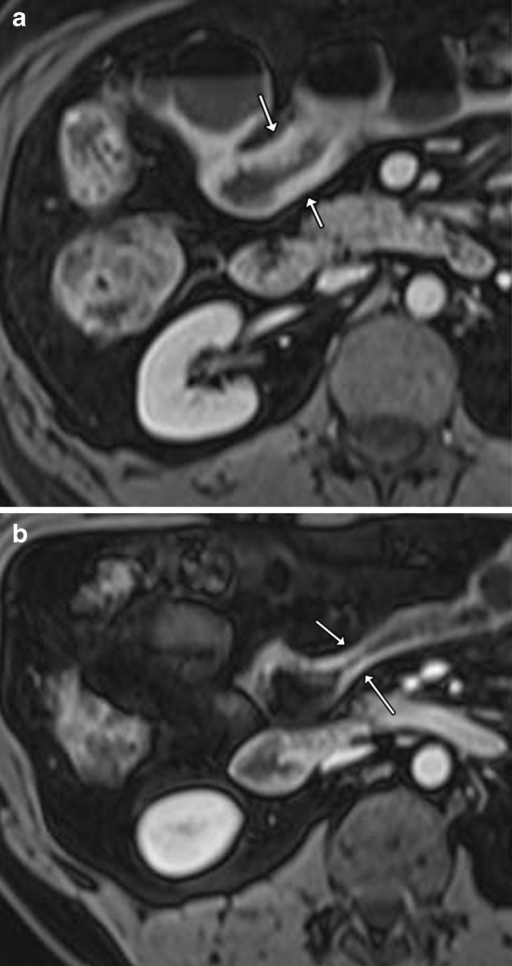 Typical example of response to treatment with a biologic: a axial T1 fat-saturated post-contrast image shows a thickened avidly enhancing segment of midileum with stratified pattern of enhancement (arrows) in keeping with active inflammation; b axial T1 fat-saturated post-contrast image following 8 months of infliximab shows inflammation has been downstaged with reduction in mural thickening and enhancement which is now homogeneous (arrows)