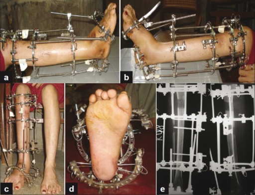 (a,b,c,d) Clinical photographs showing ilizarov in situ (e) Anteroposterior and lateral radiograph showing limb lengthening