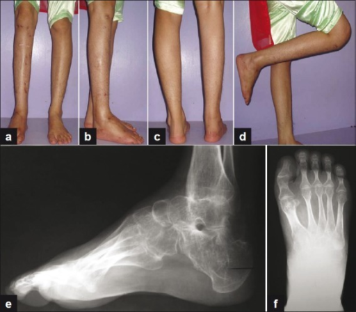 (a,b,c,d) Clinical photographs showing good correction (e, f) Lateral and antero posterior radiograph of foot at final followup showing correction