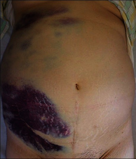 An Ecchymosis In The Right Flank And Lower Abdominal Ar Open I