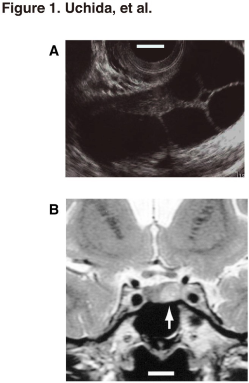 Multiple Ovarian Cysts And The Pituitary Microadenoma I Open I