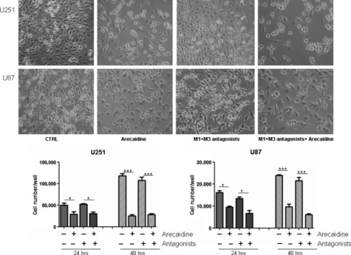 Effects of M1 and M3 muscarinic receptor antagonists on glioma cell growth. The photographs (upper panels) indicate the U251 and U87 cell lines cultured in absence of muscarinic agonists and antagonists (ctrl), maintained for 24 hrs in presence either of M2 agonist arecaidine (100 μM), or of M1 antagonist pirenzepine (10−6 M) plus M3 antagonist 4-DAMP (10−8 M) alone, or of arecaidine in co-presence with M1 and M3 antagonists (100×). The botton panel reports the data obtained by MTT analysis performed on both glioma cell lines maintained in the same experimental conditions for 24 and 48 hrs. The values are the mean ± SEM of two independent experiments performed in triplicate. The values were considered significant P < 0.05 (*); P < 0.001 (***).