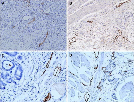 Lymphatic vessel density stained with D2-40 (podoplanin) and lymphatic vessel endothelial hyaluronan receptor-1 (LYVE-1). Expression of D2-40 in intratumoral compartment (a) and peritumoral zone (b); expression of LYVE-1 in intratumoral area (c) and peritumoral zone (d). a, b ×100; c, d ×200