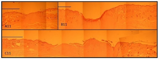 Photographs of treated wound areas. (A11) wound treated with CDP gel containing EGF, (B11) wound treated with CDP gels without EGF, and (C11) untreated group (control group) on day 11 after operation. Scale bar: 1 mm.