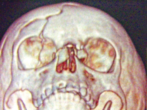 3D CT scan shows fractured right frontal bone and fractured nasal bone