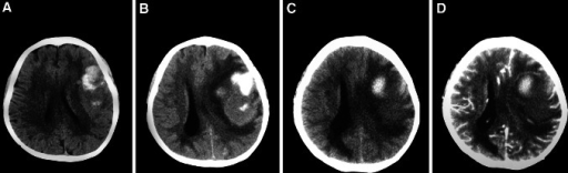 A case of subacute progressing stroke. The patient was admitted to our hospital because of dysphagia, hemiparalysis, and conscious disturbance. a CT on hospital admission showed left parietal and frontal intracerebral haemorrhage. After the initial treatment, the patient regained consciousness. b 10 days after hospital admission, the patient became lethargic, and repeated CT showed an increased mass effect and midline shift, with enlargement of the perihaematomal oedema. Stronger osmotic therapy was applied immediately and the patient's consciousness improved. c Repeated CT at 17 days post hospital admission showed that the initial haematoma shrank further, the density of the brain oedema decreased, and the mass effect alleviated modestly. d An enhanced CT at 17 days showed no ring-enhancement, eliminating the tension haematoma