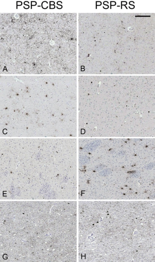 Tau immunohistochemistry in selected brain regions of the two most representative cases. PSP-CBS has significantly greater tau load in the posterior frontal (A) and anterior frontal grey matter (C) when compared with PSP-RS (B, D). Regional tau load in the caudate and subthalamic nucleus are greater in PSP-RS (F, H) than in PSP-CBS (E, G). Median tau load values. Posterior frontal grey matter: (A) PSP-CBS: 1.09; (B) PSP-RS: 0.05; Anterior frontal grey matter: (C) PSP-CBS: 0.18; (D) PSP-RS: 0.04; Caudate: (E) PSP-CBS: 0.11; (F) PSP-RS: 1.06; Subthalamic nucleus: (G) PSP-CBS: 0.05; (H) PSP-RS: 0.29. Tau load for each region, that is, 'regional' tau load was expressed as percentage (areal fraction × 100%); 'areal fraction', which was computed by Image Pro, was defined by a ratio of the tau-positive immunoreactive pixels to the total number of pixels of the whole field. AT8 immunohistochemistry, bar in panel B represents 225 microns in all the panels.