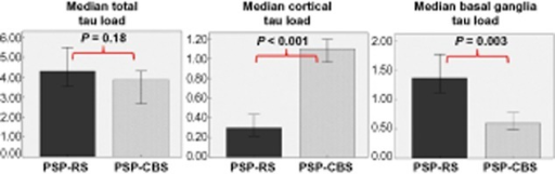 The median 'total tau load' between the PSP-CBS and PSP-RS groups are the same. However, the PSP-CBS group has greater median 'cortical tau load' and less 'basal ganglia tau load' than the PSP-RS group (Mann–Whitney U-Test). 'Cortical tau load' is the sum of regional tau load of posterior frontal grey matter, anterior frontal grey and white matter, temporal grey and white matter, parietal grey and white matter. 'Basal ganglia tau load' is the sum of regional tau load of caudate, putamen, globus pallidus and subthalamic nucleus. 'Total tau load' is the sum of regional tau load of all 15 brain regions. Error bars represent 95% confidence interval.