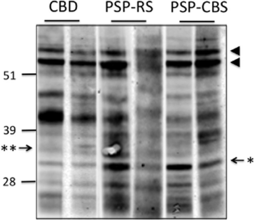 Western blot analysis of sarkosyl-insoluble tau from frontal cortex homogenates of CBD-CBS, PSP-CBS and PSP-RS. The characteristic doublet of predominant 4R-tau pathology was observed in both CBD and PSP cases (arrowheads). CBD-CBS cases have a lower molecular weight doublet consisting of proteolytic fragments at approximately 37 kDa (**); whereas PSP-RS and PSP-CBS cases have a single band at approximately 33 kDa (*). Numbers on the left indicate positions of molecular weight markers (kDa).