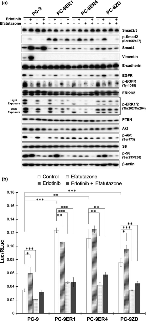 Effect of efatutazone treatment on molecules relevant to the transforming growth factor β (TGF-β), epidermal growth factor receptor (EGFR) and phosphatidylinositol 3-kinase (PI3K)/Akt pathways. (a) The effect of erlotinib and/or efatutazone on relevant molecules was evaluated by immunoblot analysis. Cells were incubated for 48 h in FBS-free medium with DMSO (0.1%; control), erlotinib (1 μmol/L), efatutazone (10 μmol/L) or a combination of erlotinib and efatutazone. The cells were lysed, and the indicated proteins were detected by immunoblotting. (b) The effect of efatutazone on Smad-mediated transcriptional activity was evaluated by using a luciferase reporter assay. After the cells were transfected with the Smad-dependent reporter p3TP-Lux, they were incubated for 24 h in FBS-free medium with DMSO (0.1%; control), erlotinib (1 μmol/L), efatutazone (10 μmol/L), or a combination of erlotinib and efatutazone. The values were normalized relative to the Renilla luciferase activity in cells cotransfected with pRL-CMV. *P < 0.05; **P < 0.01; ***P < 0.001 (Student's t-test). The error bars indicate the standard deviations of the mean.