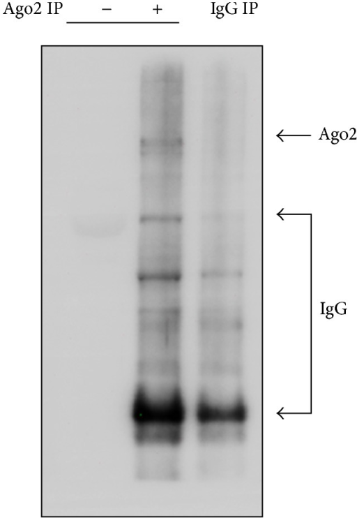 Immunoblotting analysis of muscle lysates before and after Ago2 immunoprecipitation. Total lysates (−) and precipitates with the Ago2 antibody (+) and control IgG (IgG IP) were separated by SDS-PAGE and probed with the Ago2 antibody to determine the presence of Ago2 proteins.