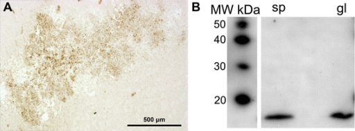 Immunohistochemistry and Western blotting. (A) Immunohistochemical analysis of a brain section from a mouse showing TSPO expression by tumor cells. (B) Western blotting assay demonstrates TSPO expression from GL26 tumor tissue (gl) as compared to spleen tissue (sp), used as a positive control. Molecular weight of the bands corresponds to 18 kDa, as demonstrated with the use of a molecular weight probe (left-most column).