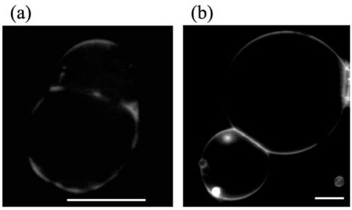Fluorescence images of (a) adhering DPPE/DOPC binary GUVs and (b) 1,2-diphytanoyl-sn-glycero-3-phosphocholine (DPhPC)/DPPC binary GUVs. Scale bars indicate 10 μm (taken from [48]).