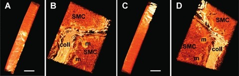 The 3D reconstructed volume of smooth muscle cells (SMC) obtained by electron tomography and digitally colored in red is rotated with 90°. A, C illustrate the thickness of section which is 500 nm (scale bar = 0.5 μm). In the front (B) and back (D) views could be seen tissue features: SMC with a crowded cytoplasm and mitochondria (m) and a bunch of collagen fibers.