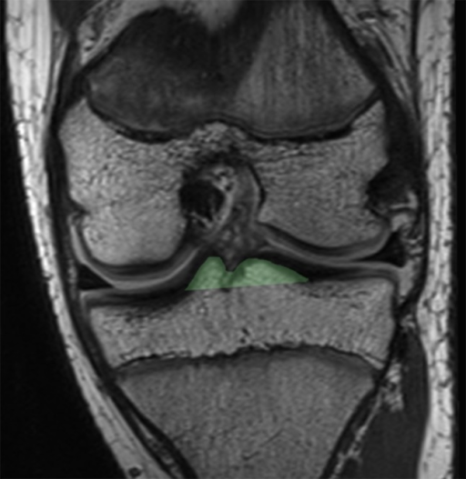A single coronal image of a proton density (PD) magnetic resonance imaging (MRI) sequence demonstrating the measuring technique for the tibial eminence volume. The measuring technique was applied to all coronal slices of the tibial eminences and summated to generate the volumetric data