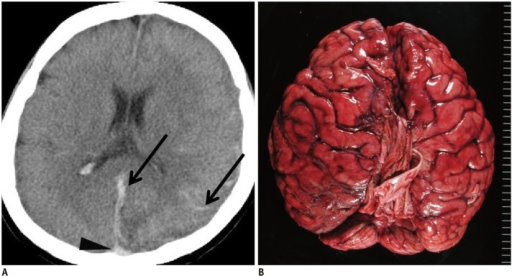 Hypostasis and hemorrhagic lesion in brain in 35-year-old deceased woman (case 1).A. CT scan obtained 8 hours and 35 minutes after death shows obscure hypostasis in dorsal superior sagittal sinus (arrowhead) in case 1. Linear and curving high density lesions are present along falx cerebri and cerebral sulcus (arrows). B. Subsequent autopsy reveals diffuse subarachnoid hemorrhage. CT = computed tomography