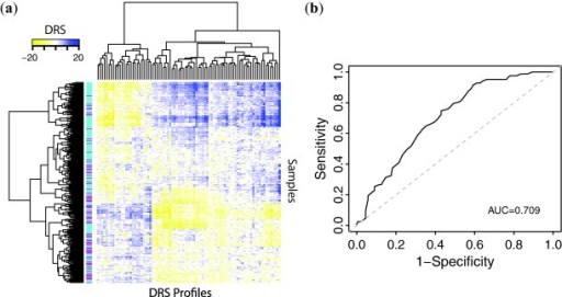 Use of DRS profiles to predict metastasis. (a) Hierarchical clustering of DRS profiles. Magenta sample labels indicate metastatic tumors and aqua sample labels indicate nonmetastatic tumors. (b) Receiver operating characteristic curve for random forest machine learning classifier, using 84 most significant DTPs.