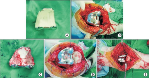 (A) The removed femoral implant was autoclaved, and the antibiotic-impregnated cement was applied to the recycled implant. (B) The recycled femoral implant with cement was replaced to the femoral condyle. (C) The implant was removed during hardening of the cement. (D) Antibiotic-impregnated cement was inserted in a dough-state after removal of the tibial implant. (E) To achieve joint congruency, intraoperative molding was performed by flexing and extending the knee joint with distal traction.