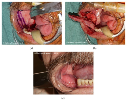 Design of a facial artery musculomucosal pedicled flap for a lateral floor of mouth and mandibular gingival defect (a). The flap is elevated and includes a portion of the buccinator muscle and the facial artery, which is deep to the muscle (b). Postoperative appearance (c).