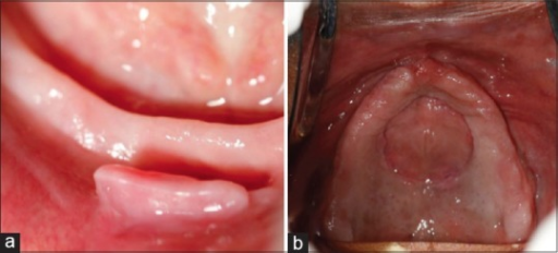 Clinical photograph showing (a) denture-induced fibrous hyperplasia in the mandibular labial vestibular area and (b) well-defined lesion in the mid-palatal area related to the use of suction rubber to improve denture retention