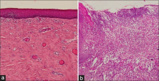 Photomicrograph showing (a) fibrous tissue covered by atrophic epithelium with absence of rete ridges (H and E ×20) and (b) non-specific ulceration (H and E, ×20)
