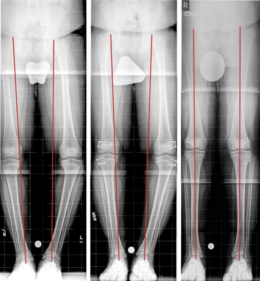 Twelve-year-old male with bilateral Blount disease, underwent bilateral distal femoral and proximal tibial lateral hemiepiphysiodsis with a TBP. a Long erect X-ray shows preoperative bilateral varus deformity with medial mechanical axis deviation, b 3 months after insertion of bilateral distal femur and proximal tibia lateral physeal TBP, c last follow-up with corrected deformity and central mechanical axis. The broken left tibial metaphyseal screw occurred 2 years earlier, when the first TBP was inserted for gradual varus correction.Copyright 2016, Rubin Institute for Advanced Orthopedics, Sinai Hospital of Baltimore
