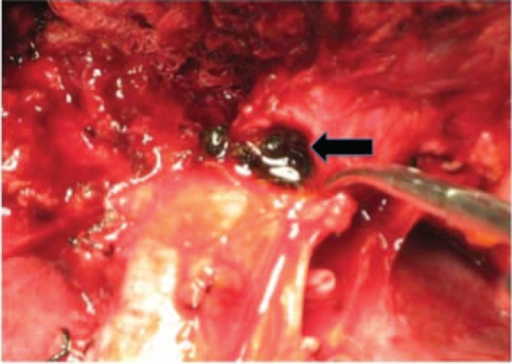 Pigment stones (black arrow) in left IHD were shown intraoperatively. IHD = intrahepatic duct.