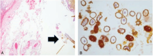 A, Histopathology examination of the liver specimen showed acute and chronic inflammation of liver parenchyma with lithiasis harboring Ascaris ova (black arrow, 10× objective). B, Ascaris ova under higher magnification (40× objective).