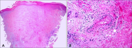 (A) Histologic findings showed hyperkeratosis, epidermal atrophy, and dermal sclerosis in the central portion (H&E, ×40). (B) Lymphocytic infiltration around vessels, fibrinoid necrosis of the vessel wall, and thrombus deposition in the lumen were seen (H&E, ×400).
