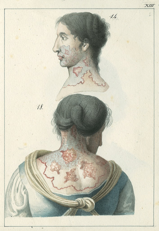 <p>Illustrations of Adriana De Rocco, age fifty-five with a &quot;herpetic ulceration&quot; across her shoulders, covered with dense purulent scaling.</p>