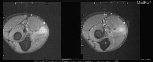 MRI of forearm shows a hyperintense signal localized within the digitorum superficialis muscle with a central hypointense structure, possibly calcium. These findings suggest an inflamed cysticercosis cyst. Absence of ring enhancement suggests that abscess is not present.