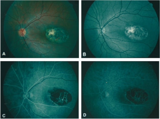 Color fundus photography shows a sharply-demarcated, oval-shaped, excavated lesion involving the temporal half of the macula (A). Red-free retinal nerve fiber layer photography shows intact papillomacular bundle around the lesion (B). Large choroidal vessels and bared sclera are observed at the base. Fluorescence angiography shows hypofluorescence corresponding to the size of the lesion in both early (C) and late frames (D) without leakage of dye.