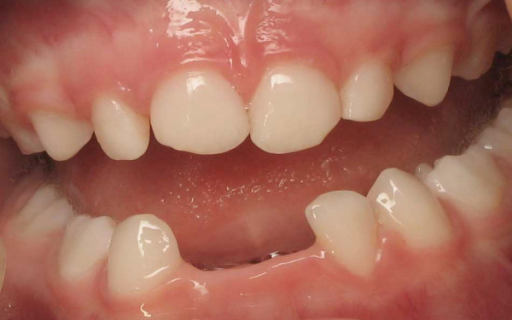Patient 4: Clinical view at 2.5 years of age. The lower incisors (71, 72 and 81) are lost spontaneously without gingivitis.