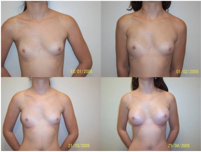 laparoscopic breast implants
