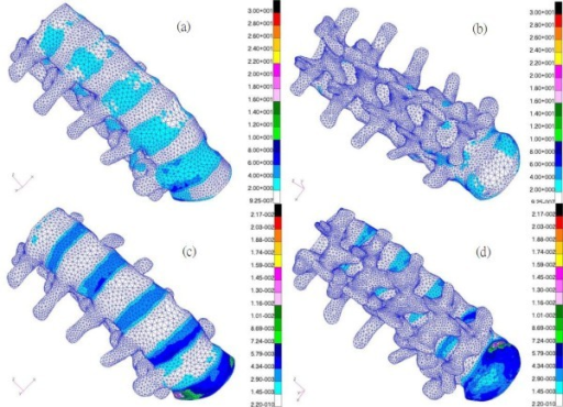 (a) Front view/(b) Back view of von Mises stress distribution and (c) front view/(d) back view of von Mises strain distribution in the lumbar spine (without ligaments) under an evenly distributed load of 460 N over the superior surface of the L1 vertebral body in a standing posture.