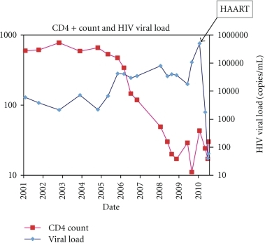 Graph of cd4 cell counts and hiv viral loads from 2001 open i