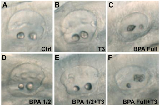 BPA effect on otolith development is thyroid hormones independent. (A) Control otic vesicle at 50 hpf with two otoliths. (B) Treatment with 1 μM of T3, from 5 hpf onwards lead to a normal otolith development. (C) 70 μM BPA treated embryo from 5 hpf onwards lead to otolith aggregates. (D) Half dose of BPA, 35 μM, does not affect otolith development. (E) Co-treatment of half dose of BPA, 35 μM, supplemented with 1 μM of T3 does not affect otolith development. (F) Co-treatment of full dose of BPA, 70 μM supplemented with 1 μM of T3 lead to a similar otolith phenotype than BPA 70 μM alone (compare C with F).