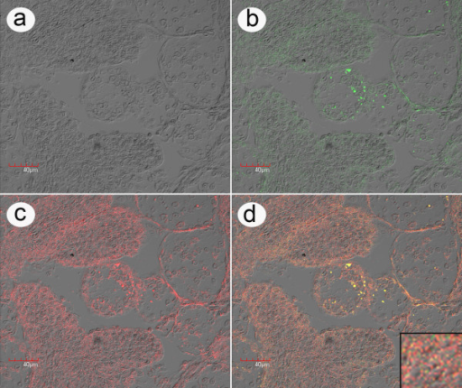 High magnification in situ hybridization of LO from bioassay. High magnification example of an in situ hybridization reaction using a rhodamine-labeled ICE probe (red) together with an FITC-labeled LSNV probe (green) with lymphoid organ (LO) tissue of a P. monodon specimen from challenge test 1 that was positive by RT-PCR for both ICE and LSNV. This is a photomicrograph of a single confocal microscope image layer showing that the fluorescence distribution for ICE and LSNV is in the cell cytoplasm and not the nuclei. A lower magnification photomicrograph showing brighter fluorescence from multiple confocal microscope image layers is shown in Additional file 4. a) Phase contrast image; b) Image of LSNV fluorescence; c) Image of ICE fluorescence; d) Combined images with a magnified insert showing that the fluorescence distribution for the two signals is single (green or red) and combined (yellow). Note that the fluorescence is located in the cell cytoplasm and is most intense in the normal tubules of the LO and much less intense in the spheroids (i.e., the circular groups of cells surrounded by a ring of sheath cells that are most clearly visible in the combined image d). Negative control images from a normal shrimp specimen are shown in Additional file 3.