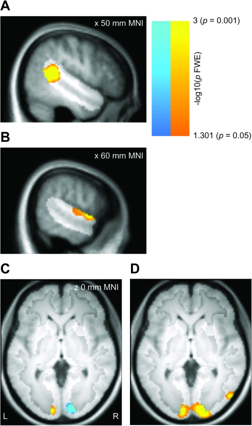 Group results for the univariate analysis, displayed on the mean T1 volume for the sample. Effects are displayed corrected for multiple comparisons within the right STS region (panels A–B; hypothesis-driven analysis, P < 0.05 FWE) or the full gray matter volume (panels C–D; exploratory analysis, P < 0.05 FWE). The highlighted portion of each panel shows the extent of the mask. (A) Greater univariate responses to heads than to ellipsoids in the right STS region. (B) Greater univariate responses to ellipsoids than to heads in the right STS region. (C) Gray matter regions with greater univariate responses to left than to right head turns (warm colors) or with greater univariate responses to right than to left head turns (cool colors). The effects do not overlap at any site. (D) Gray matter regions with greater univariate responses to heads than to ellipsoids.