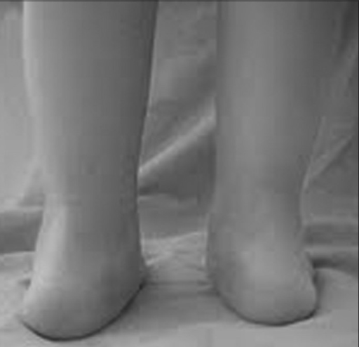 Clinical photograph showing valgus foot (Rt side) when the patient was weight bearing