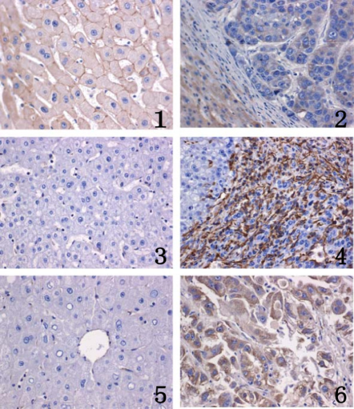 Immunohistochemistry of E-cadherin, Vimentin and GP73 in PCL tissues and HCC tissue (400×). E-cadherin was detected in the cell membrane. Note that E-cadherin showed moderate and strong staining in s (PCL) (1) By contrast, it was almost absent in normal control HCC(2) (×400).Vimentin was detected in the cytoplasm and interstitial cells. Note that Vimentin was almost absent in normal controls (PCL) (3) By contrast, moderate and strong staining was seen in HCC (4) (×400).GP73 protein expression was evaluated by an En-Vision immunohistochemical method. Note that GP73 was almost absent in normal controls (PCL) (5). By contrast, moderate and strong staining of GP73 was identified in HCC, respectively. (×400). (6).