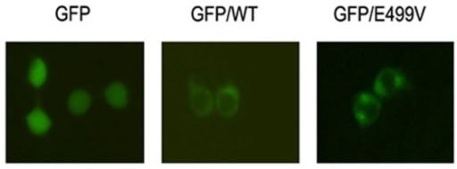 Effect of E499V mutation on subcellular localization of HAS2.293T cells were transfected with empty vector pEGFP-N1, pEGFP-HAS2 wild-type, and the E499V mutant separately. After 30 h, transfected cells were then analyzed with an inverted fluorescence microscope to study the protein localization.